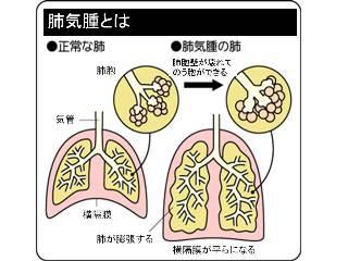 症状 肺気腫